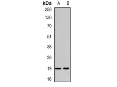 Anti-NUDT15 Antibody