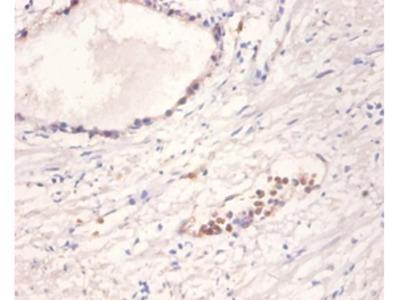 Neurotrophin-4 Polyclonal Antibody