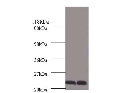Chorionic somatomammotropin hormone Polyclonal Antibody