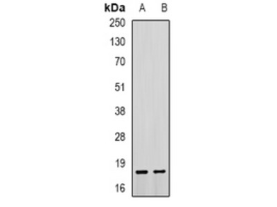 Anti-Troponin C Antibody