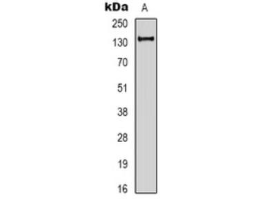 Anti-EPG5 Antibody
