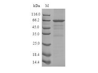 Recombinant Human Schlafen family member 12-like (SLFN12L)