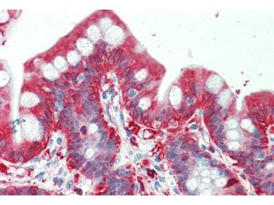 Mouse Anti-ALDH1A1 / ALDH1 Antibody