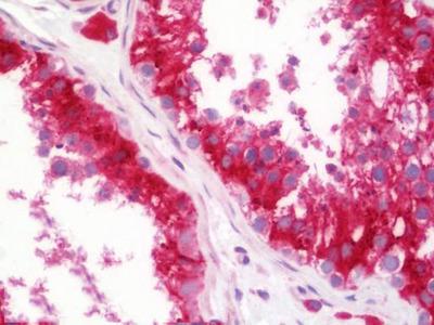 Anti-PRAF2 Antibody (aa141-190) IHC-plus