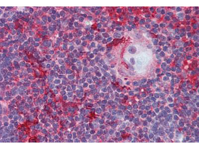 Mouse Anti-p56lck / LCK Antibody