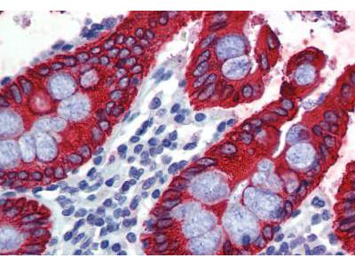 Mouse Anti-Pan Cytokeratin Antibody
