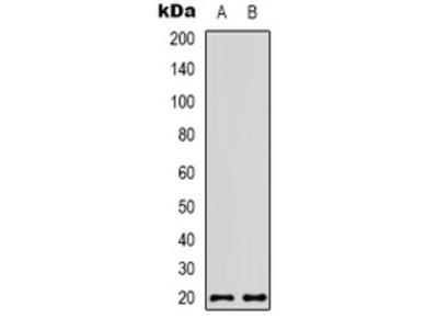Anti-CBP20 Antibody