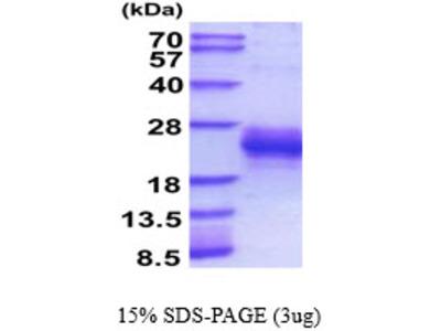 Pgf, 27-158aa, Mouse, His tag, Baculovirus