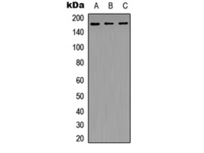 Anti-NFAT5 Antibody