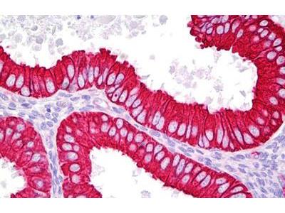 Rabbit Anti-KRT18 / CK18 / Cytokeratin 18 Antibody