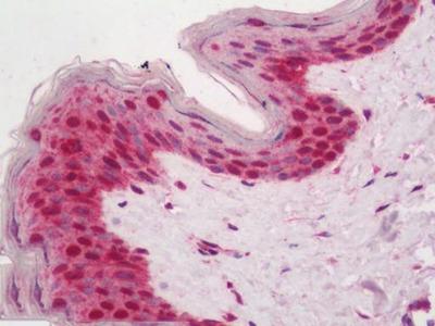 Rabbit Anti-TICRR Antibody