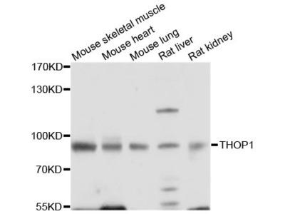 THOP1 Polyclonal Antibody