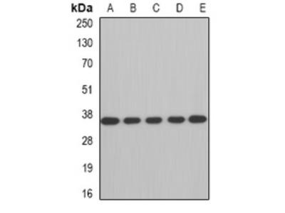 Anti-AUH Antibody