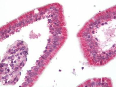 Anti-TXNIP Antibody (Internal) IHC-plus