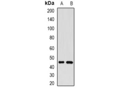Anti-GP73 Antibody