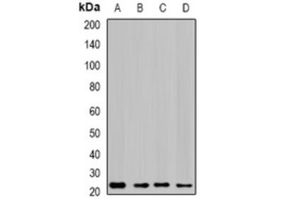 Anti-GTL3 Antibody