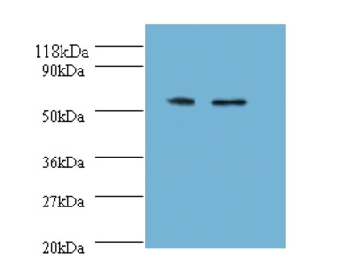 Rabbit Anti-Citrate synthase Antibody