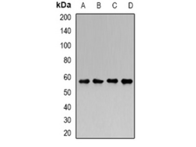 Anti-Chondroitinase Antibody