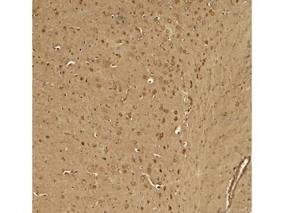 Rabbit Anti-TWIK1 / KCNK1 Antibody