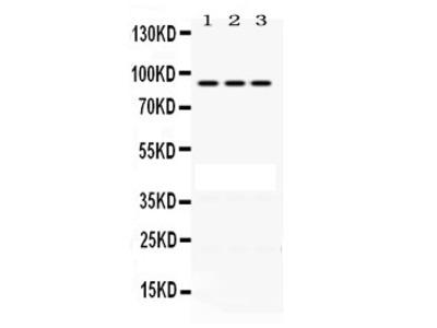 Anti-PRLR Antibody