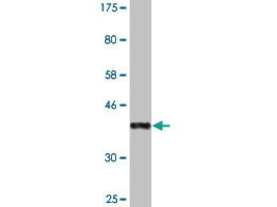 Mouse Anti-PRMT3 Antibody