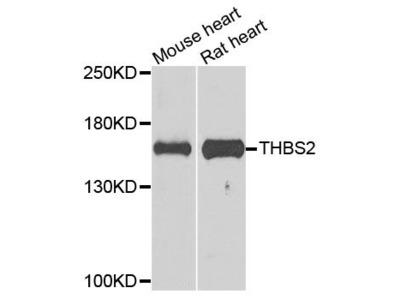 THBS2 Polyclonal Antibody