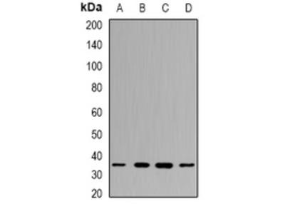 Anti-PPX Antibody
