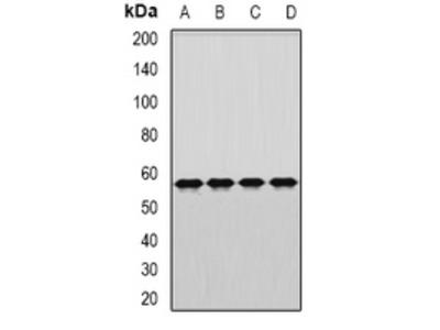 Anti-DARS Antibody