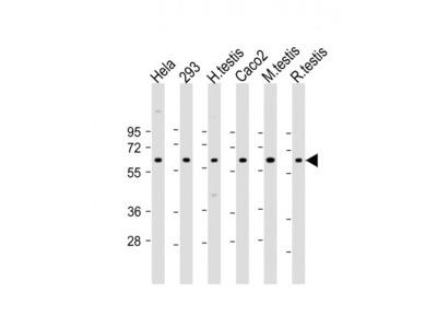 SLC2A8 Antibody (Center)