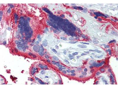 Mouse Anti-NT5E / eNT / CD73 Antibody