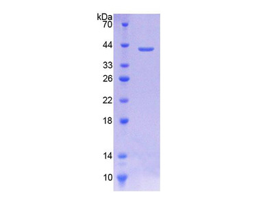 SLC44A1 / CD92 Protein