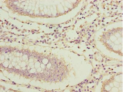 ARPIN / C15orf38 Polyclonal Antibody