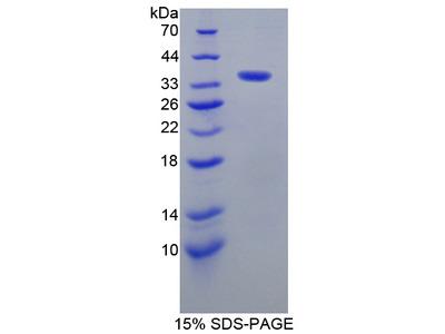 AKAP11 / KIAA0629 Protein