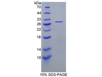 HDLBP / Vigilin Protein