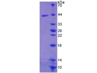 CCL19 / MIP3-Beta Protein