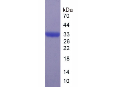 ASAH1 / Acid Ceramidase Protein