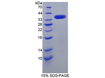 SRPK3 / MSSK1 Protein
