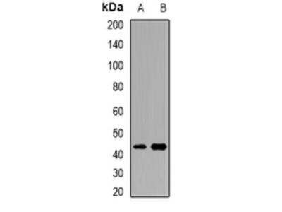 ACTR3B / ARP4 Antibody