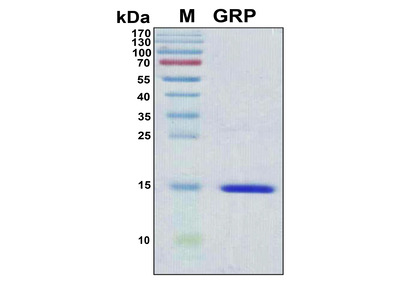 Recombinant Human Gastrin-releasing peptide (GRP)