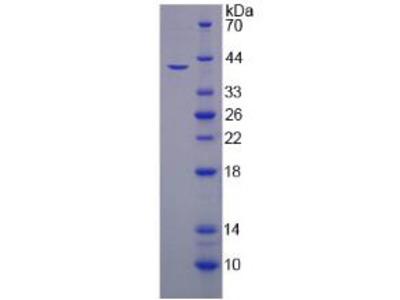 HEPH / Hephaestin Protein