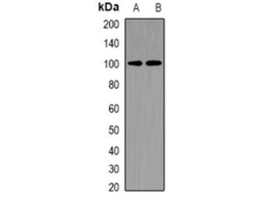 CHM / REP1 Antibody