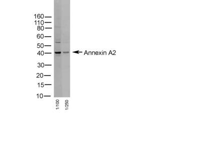 RABBIT ANTI HUMAN ANNEXIN II