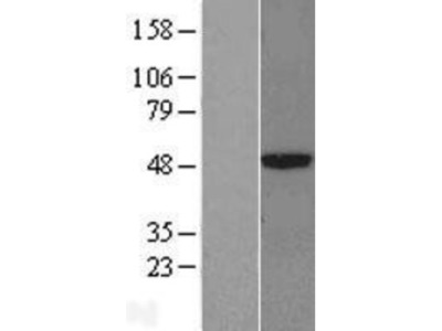 CPA3 Overexpression Lysate (Native)