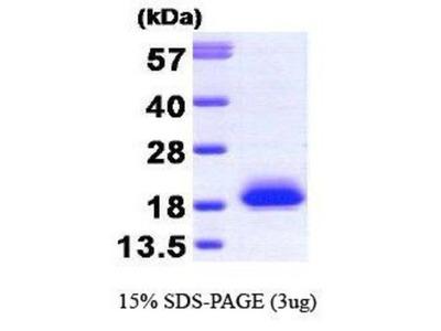 visinin-like 1 Recombinant Protein