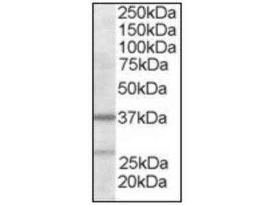 anti ARPC1B / ARC41 (2-14)