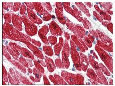 anti Cardiac Troponin I