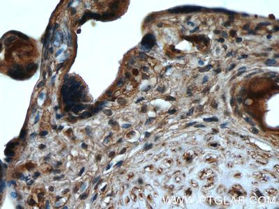 PPAR Gamma Monoclonal Antibody