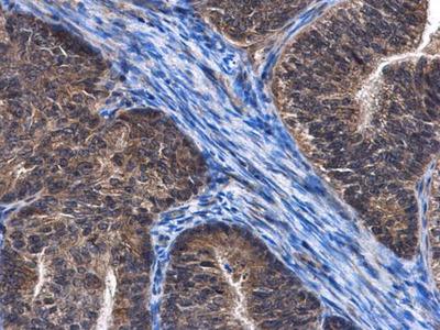 Anti-C6orf97 antibody