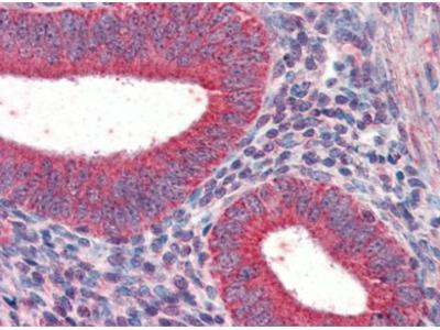 TRIM5 alpha (TRIM5) (2-15) goat polyclonal antibody, Aff - Purified
