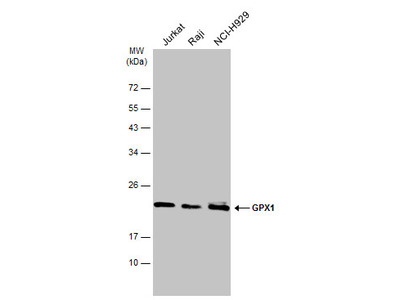 Great GPX1 Antibody from GeneTex for Western Blot
